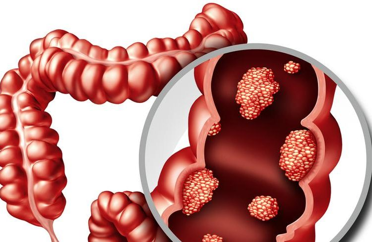 A Brief Look Into The Colorectal Cancer